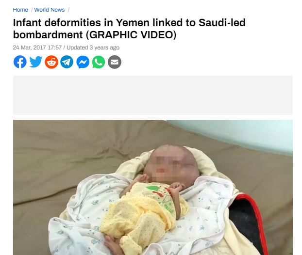 Yemen Babies Radiation Defects